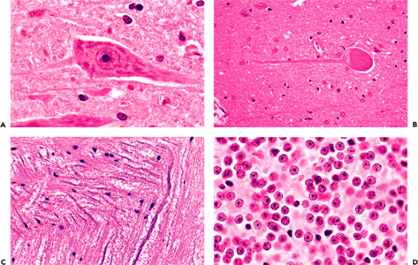 Nissl Bodies Histology Include a large cell body