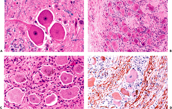 8 - Skeletal Muscle | Histology for Pathologists