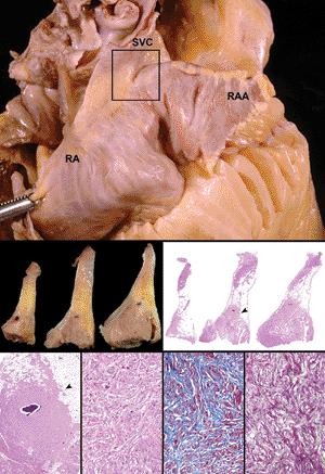Av node anatomy