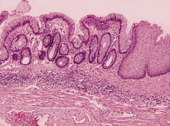 Anal Canal Histology 65