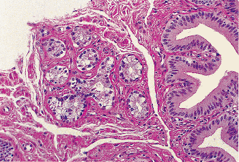 22 - Esophagus | Histology for Pathologists