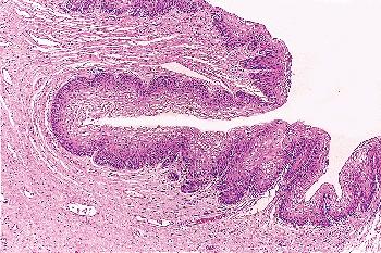 vestibular papillomatosis histopathology coagularea negi genitale