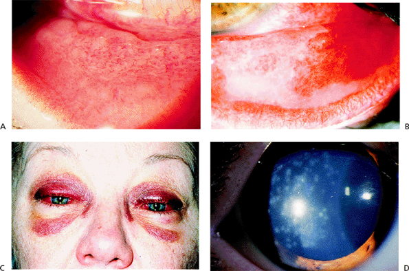 hemorrhagic conjunctivitis related keywords hemorrhagic