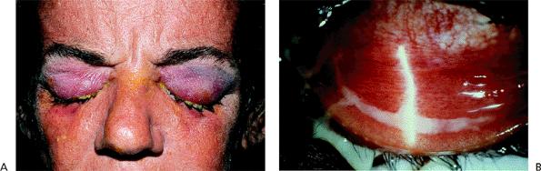 diflucan dosage yeast infection children