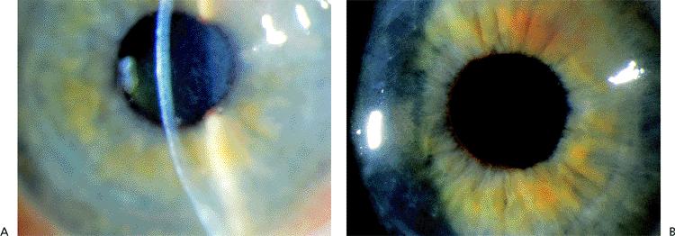 cornea and external eye disease pdf