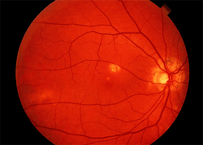 Presumed Ocular Histoplasmosis Syndrome. Note The Peripapillary Atrophy And  Macular Punched Out Chorioretinal Scar ( Histo Spot ).  Presumed Ocular Histoplasmosis
