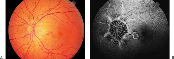 A Subretinal Hemorrhage And Fluid In Patient With Pseudoxanthoma Elasticum Angioid Streaks B The Fluorescein Angiogram Shows Classic Choroidal