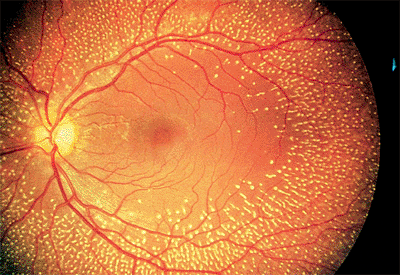4 Vitreoretinal Disorders The Wills Eye Hospital Atlas