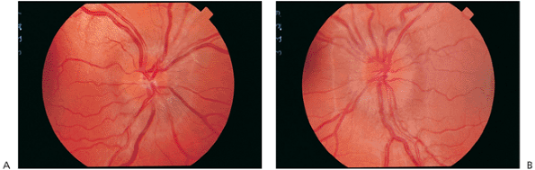 how to detect early papilledema