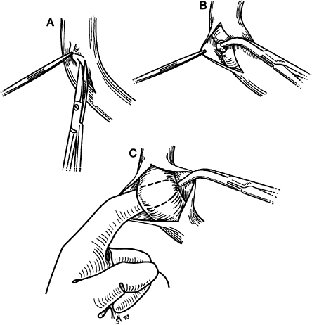 Fig. 26-1. Technique of dissection of a major pulmonary artery. A. Fascial envelope is elevated and incised longitudinally. B. Fascial layer is grasped ...  sc 1 st  Flylib.com & 20 - Preoperative Cardiac Evaluation of the Thoracic Surgical ...