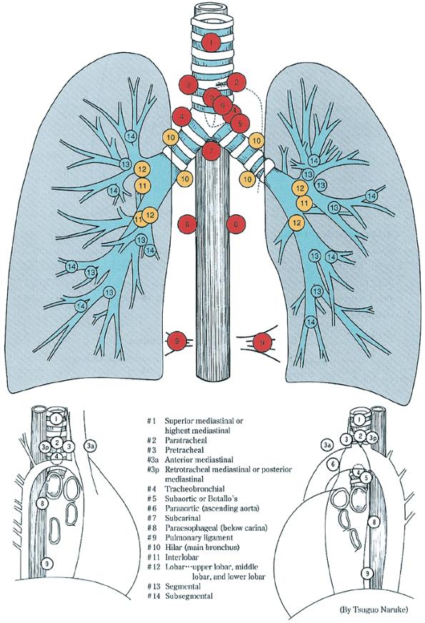 Mediastinal Lymph Nodes Vatozozdevelopment